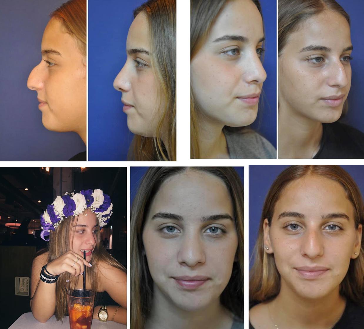 ניתוח אף לנערות לפני ואחרי