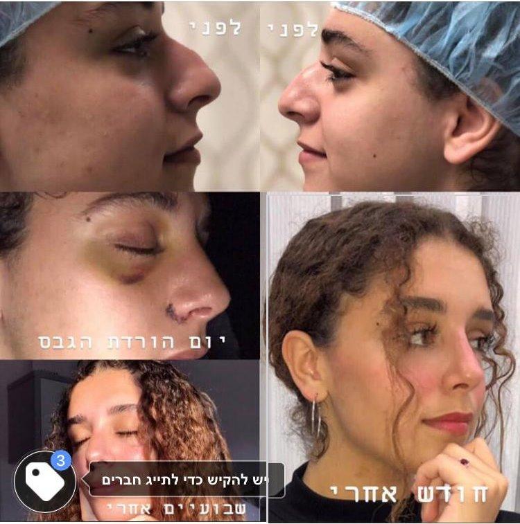 תמונות ניתוח אף