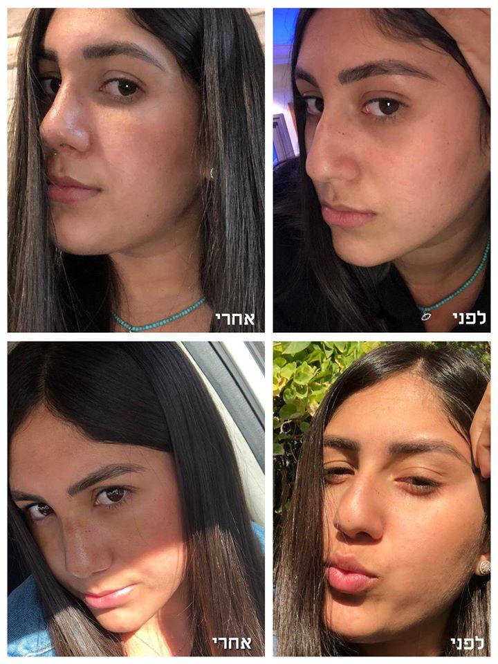 תמונות לפני ואחרי של ניתוח אף